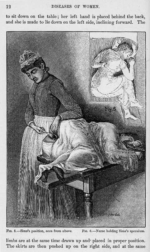 Excerpts From Dr  Alexander Skene U0026 39 S  U0026quot Diseases Of Women U0026quot  At Mum